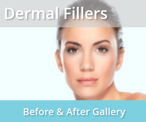 Aging with Grace and Beauty – Dermal Fillers is the answer