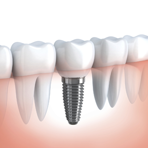 What are dental implants? When do you want it?