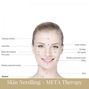 Skin needling as a treatment for skin disturbing impact scarring